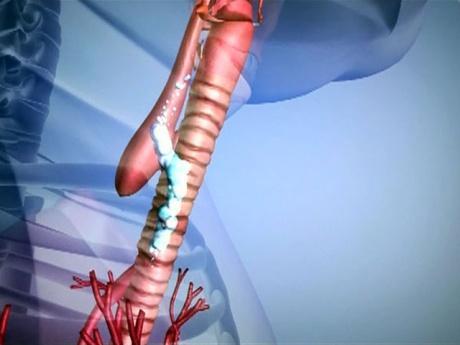 Атрезия влагалища с какого возраста операция